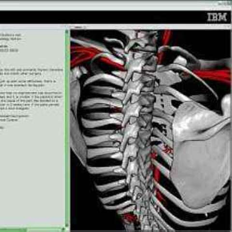 Software da IBM funciona como Google Earth do corpo humano. 26/9/2007
