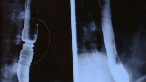 Imagem mostra os efeitos, ao engolir, da esofagite easinofílica, doença conhecida como 'asma do esôfago' - Divulgação