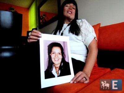 Colombianas procuram plástica para esconder marcas de