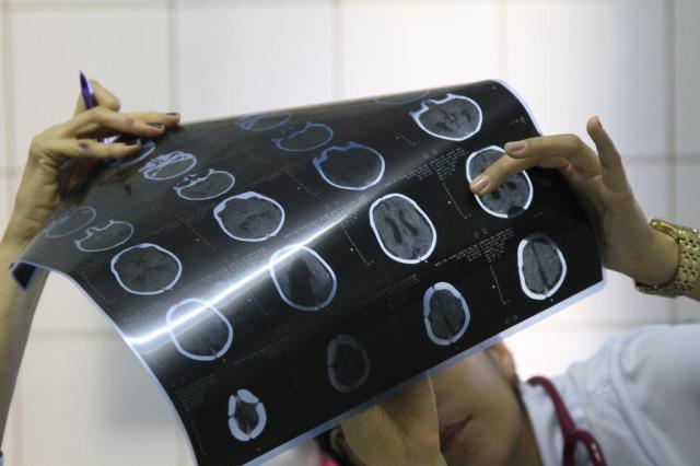 O que é microcefalia?