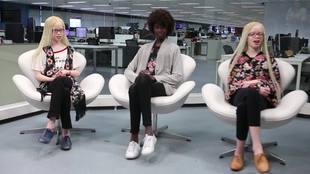 Gêmeas albinas e irmã negra fazem sucesso no mundo da moda
