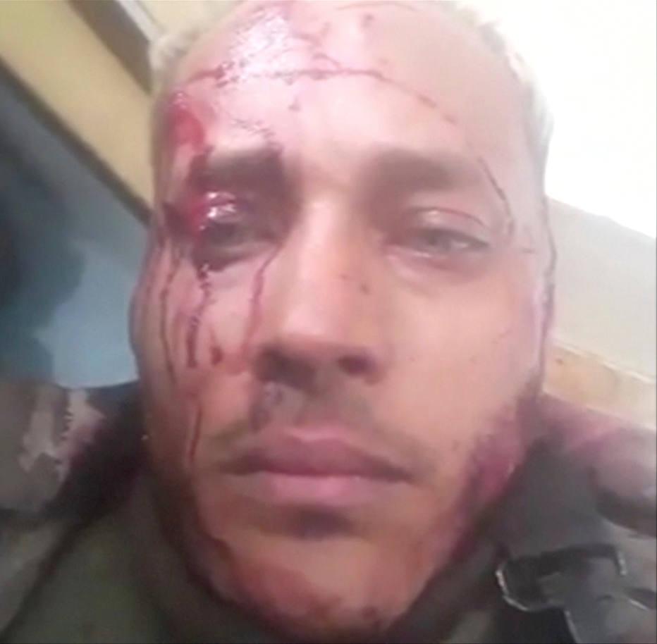 Dans les vidéos publiées sur Instagram pendant le siège de la police, Oscar Pérez semble ensaguentado visage et accuse les forces de sécurité de vouloir le tuer