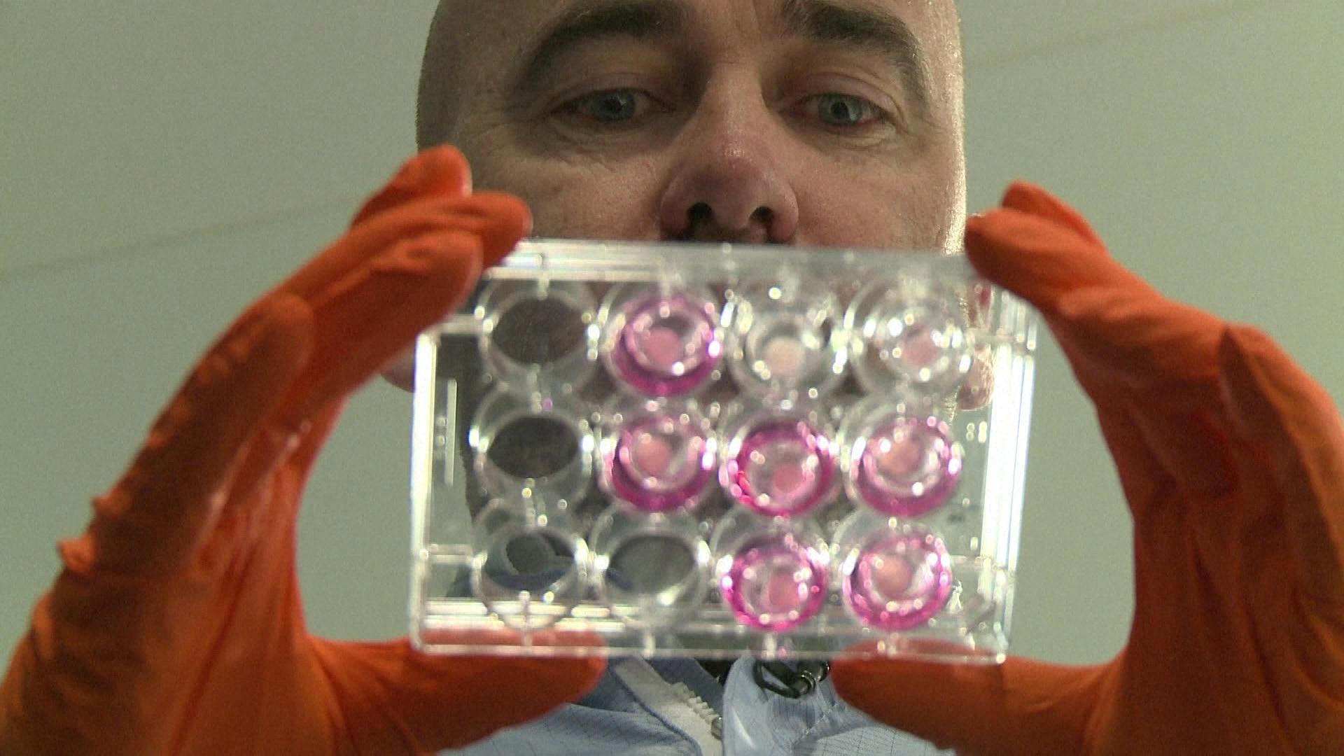 Bioimpressão: o futuro da regeneração da pele