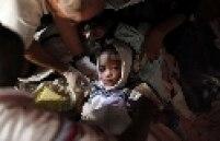 Criança é atendida por equipes de socorro em Porto Príncipe, capital do Haiti