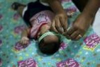 Todos os casos de crianças com microcefalia relacionada ao vírus zika serão investigados, segundo o governo. A mudança para o parâmetro do perímetro cefálico igual ou menor de 32 cm segue recomendação da OMS. A medida de 33 cm foi adotada inicialmente com o objetivo de compreender melhor a situação