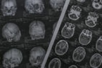 O Rio de Janeiro é o único Estado da Região Sudeste a aparecer na lista dos dez com mais notificações: está em sexto lugar. São 256 no total, sendo que 2 foram confirmados e 4, descartados. Pesquisadores do Rio investigam se, além de causar malformação de bebês durante a gravidez, o vírus zika pode desencadear problemas no cérebro de adultos (clique<a href='http://saude.estadao.com.br/noticias/geral,zika-pode-estar-ligado-a-lesoes-no-cerebro-de-adultos,10000018523' target='_blank'>aqui</a>para ler).