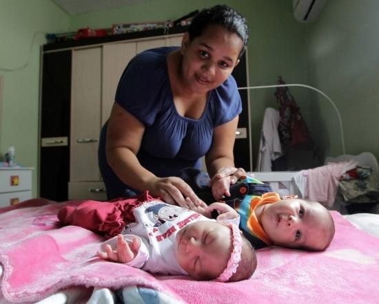 Jaqueline, com Laura e Lucas: menina nasceu com perímetro cefálico de 26 cm