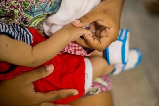 Distribuição. Número de casos de bebês com microcefalia ainda é mais alto no Nordeste