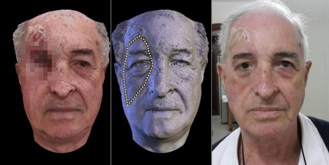Parte do processo de criação da prótese do pacienteVictorioGorzoni