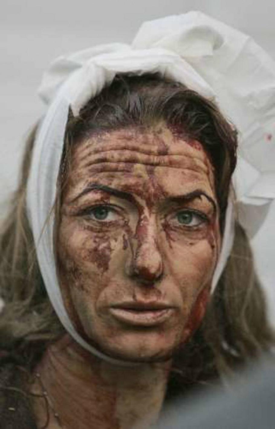 Mulher é atingida por foguete palestino - Ariel Schalit/AP