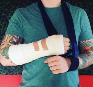 Ed Sheeran quebra o braço após ser atropelado em Londres