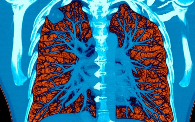 IA pode ler tomografias e ajudar a detectar casos