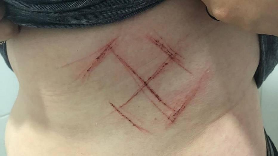 Jovem de 19 anos teve a barriga marcada com traços semelhantes a uma suástica - símbolo do nazismo