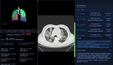 https://link.estadao.com.br/noticias/empresas,hc-vai-usar-inteligencia-artificial-para-analisar-pulmao-de-doente-com-coronavirus,70003280646