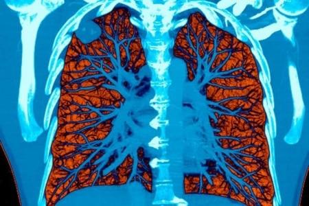 https://link.estadao.com.br/noticias/cultura-digital,como-a-inteligencia-artificial-e-capaz-de-detectar-o-cancer,70002945426