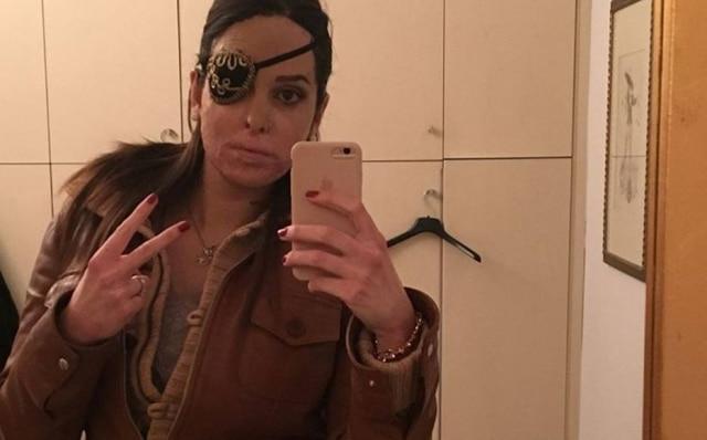Gessica foi atacada pelo ex-namorado em janeiro de 2017