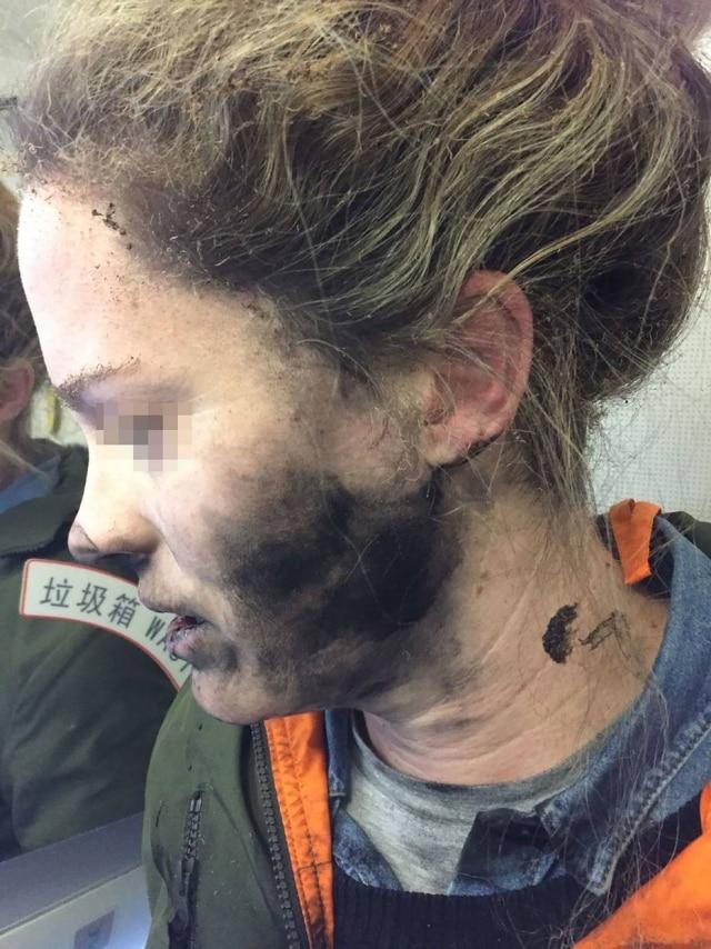 Além do rosto, a passageira teve ferimentos nas mãos ao tentar tirar os fones de ouvido.
