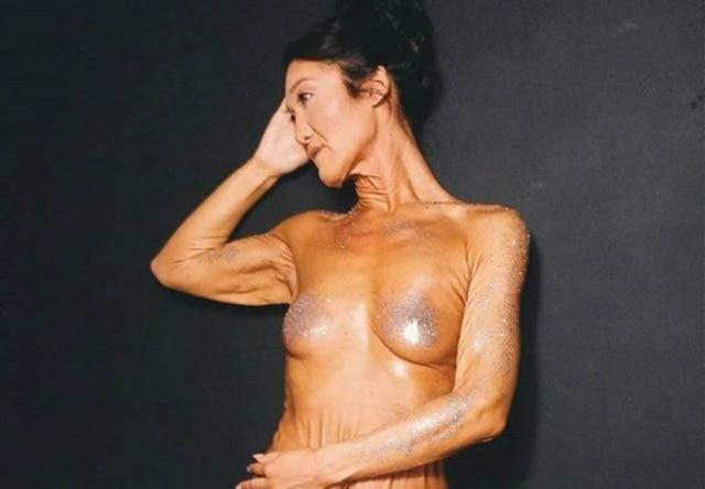 Sara Geurts é portadorada síndrome de Ehlers-Danlos