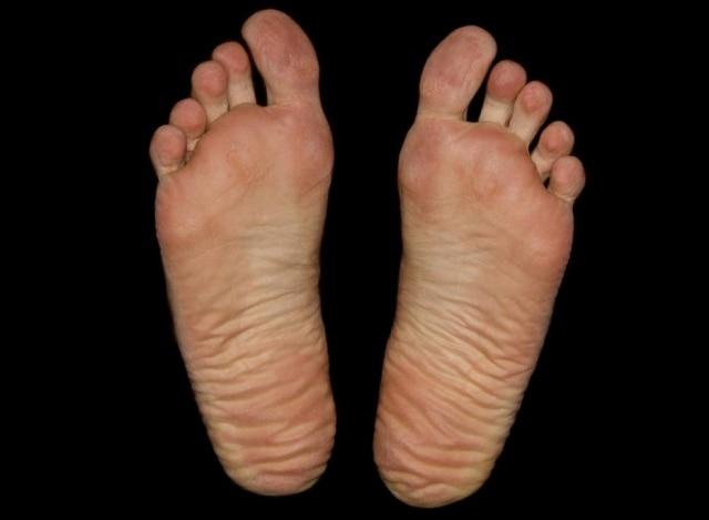 A PAF (pollineuropatia amiloidótica familiar) começa a se manifestar como insensibilidade, formigamento e dormência nos pés. Os sintomas sobem, gradualmente, às pernas, aos braços e às mãos.