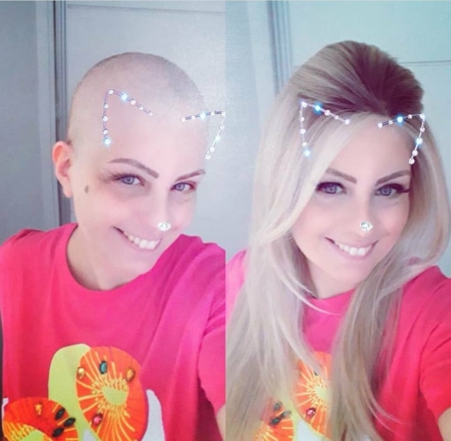 Anne Carrari, paciente com câncer de ovário metastático