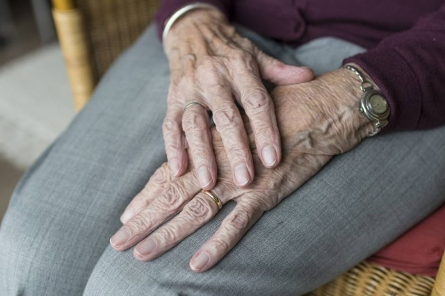 Artrite reumatoide afeta, principalmente, as articulações das mãos e dos pés.