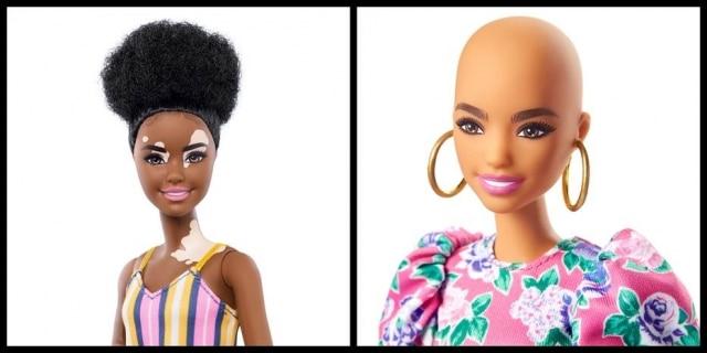 Novas bonecas Barbie tem modelo com vitiligo e sem cabelo.