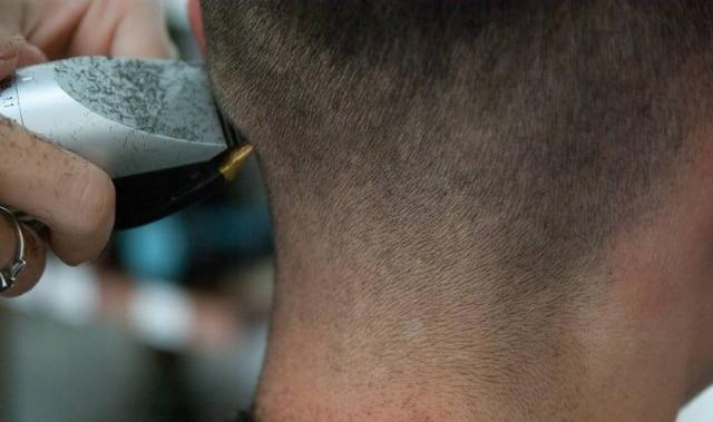 Pai e madrasta estão sendo acusados de obrigarem jovem a cortar o cabelo por conta de um procedimento estético que ela fez