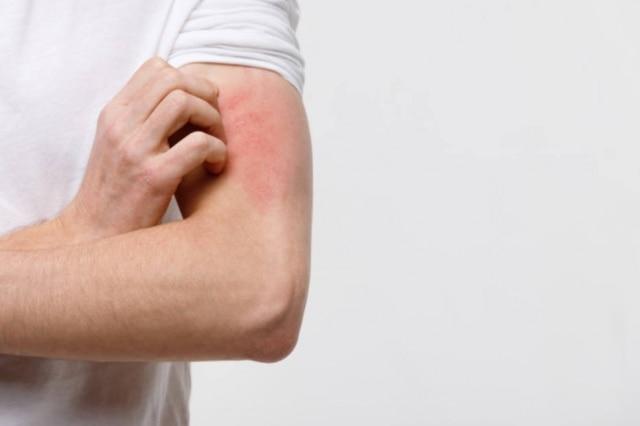 A psoríase e a dermatite atópica estão ligadas à necessidade de manter a pele hidratada