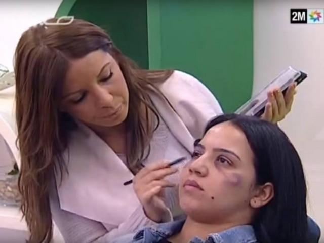 Tutorial de maquiagem ensinou como cobrir hematomas causados por violência doméstica