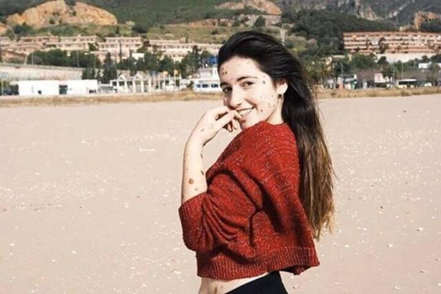 A jovem Alba Parejo possuimelanose congênita,que faz com que seu corpo seja coberto por manchas