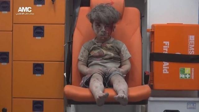 Com o rosto coberto de sangue e pó, a criança aparece sentada em uma ambulância após ser resgatada de uma casa bombardeada