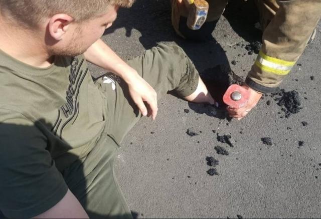 Homem teve seu pé preso em buraco causado pelo derretimento do asfalto.